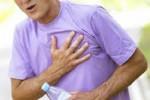El colesterol y los infartos