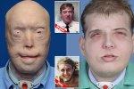 El trasplante de cara más complejo